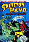 Cover For Skeleton Hand 3