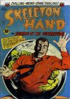Cover For Skeleton Hand 6