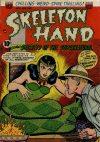 Cover For Skeleton Hand 2